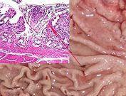 Хронический лимфоидный гастрит