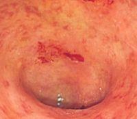 Хронический спастический колит кишечника с запором