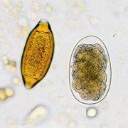 Исследование на яйца гельминтов