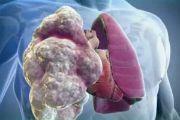 Эмфизема легких — симптомы, лечение