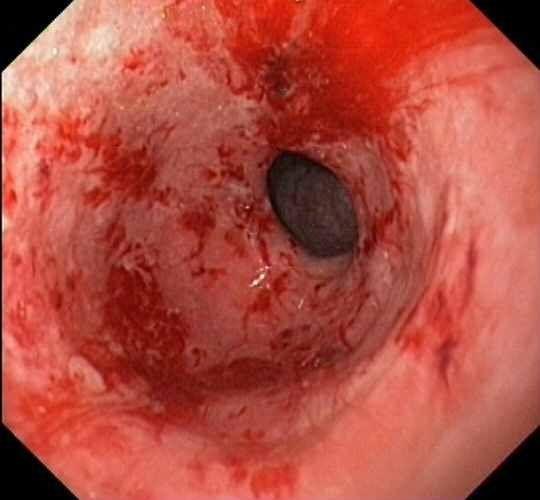 Эрозивный гастрит с геморрагическим компонентом, с эрозиями, его симптомы и лечение народными средствами
