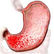 Эрозивный хронический катаральный поверхностный очаговый гастрит