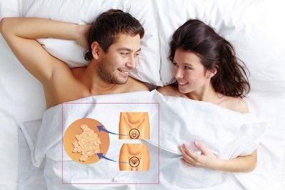 Как делают анализы на вирус папилломы человека