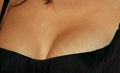 Как избежать появления растяжек на груди