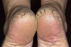 Как лечить трещины на пятках - проверенный рецепт