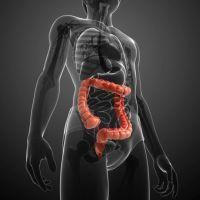 Как лечить воспаление сигмовидной кишки?