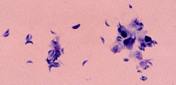 Как не заразиться токсоплазмозом?