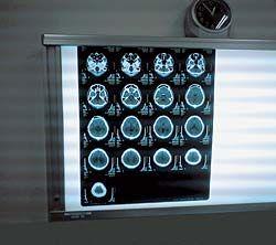 Мрт – преимущества магнитно-резонансной томографии перед другими методами диагностики