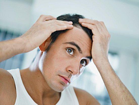 Как предотвратить выпадение волос у мужчин?