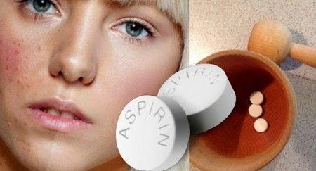 Как применять аспирин от прыщей — рецепты и советы