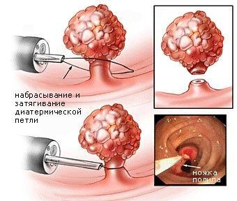Как происходит эндоскопическое удаление полипов