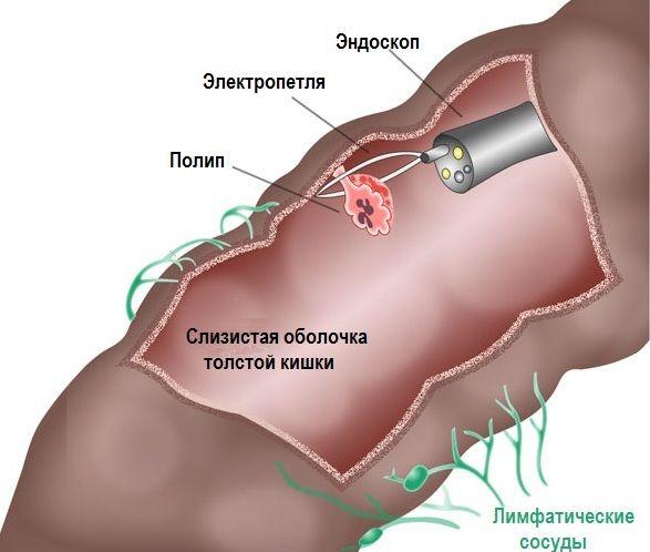 Колоноскопия и удаление полипов