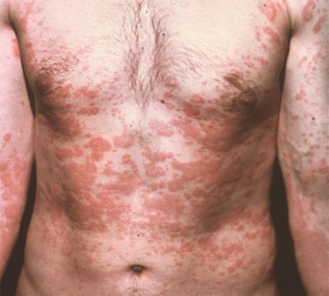 Как проявляются глисты (гельминтоз, гельминты, глистная инвазия) у детей и взрослых?
