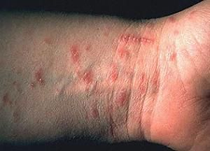 Как распознать чесотку: первые признаки, симптомы и методы лечения