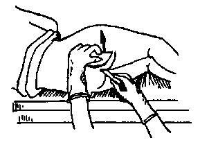 Cоскоб кала на энтеробиоз