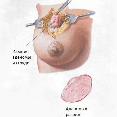 Изъятие аденомы