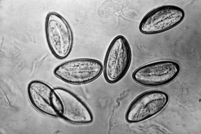 Как выглядят яйца остриц и их личинки у ребёнка на фото, куда откладывают, как они погибают?