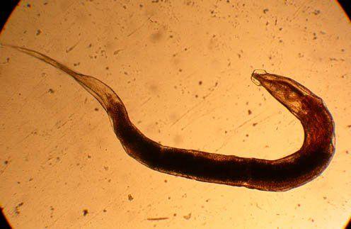 Остриця під мікроскопом