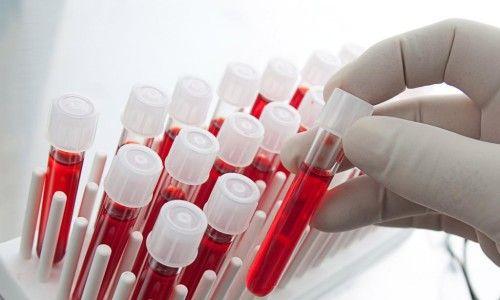 Вся правда об анализе крови на глисты