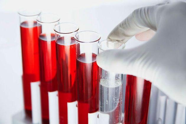 Какой анализ крови показывает наличие паразитов?