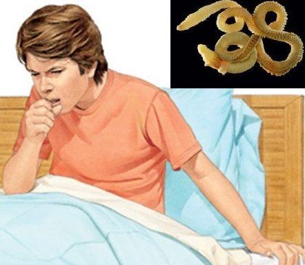 Кашель при глистах у дітей і дорослих, які гельмінти викликають?