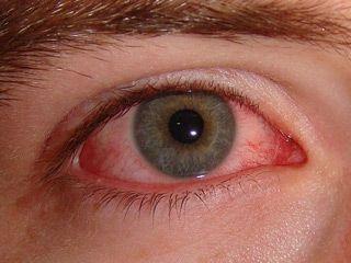 Конъюнктивит аденовирусный — неприятное заболевание