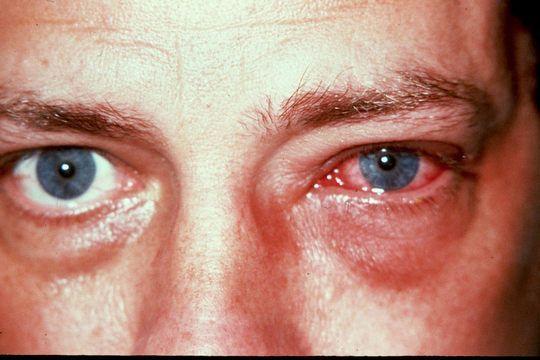 adenovirusnyj-konjunktivit-3