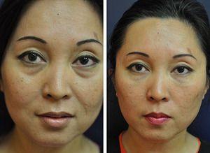 Коррекция носослёзной борозды - методы, фото до и после