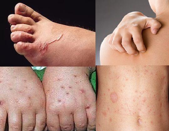 Кожная форма токсокароза - сыпь на коже