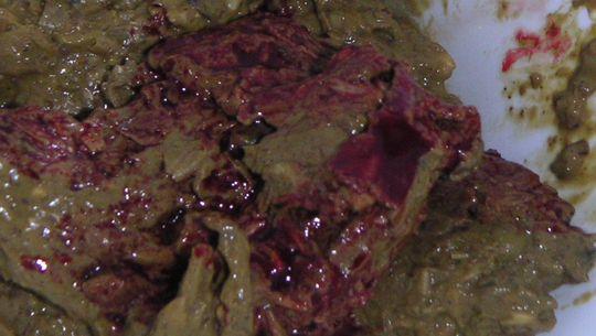 Кровь в кале при колите