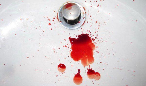 Кровоточит наружный геморрой, что делать?
