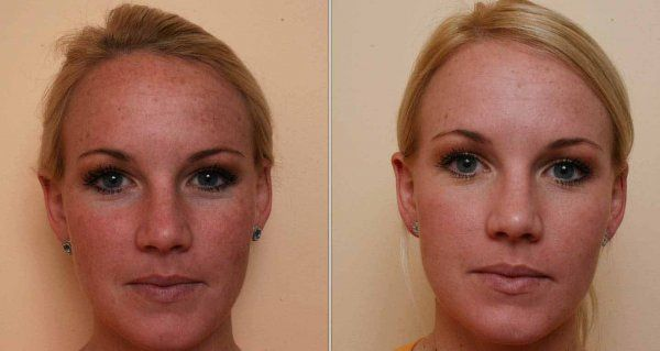 Лазерный пилинг лица – суть процедуры и результаты лазерной шлифовки лица