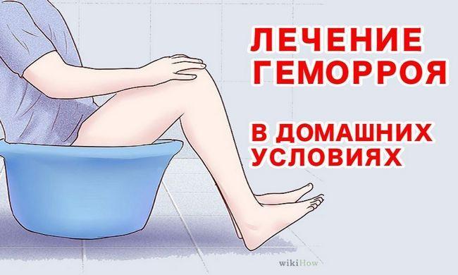 Лечение геморроя у мужчин в домашних условиях народными средствами