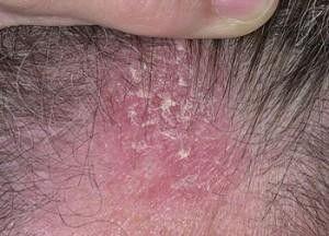 Лечение и профилактика себорейного дерматита: медикаментозные и народные средства