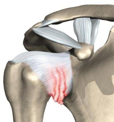 Восстановление при плечелопаточном периартрите без лечебной физкультуры невозможно