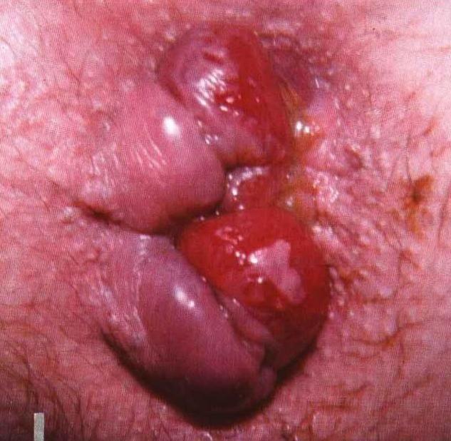 Лечение воспаления геморроя у беременных