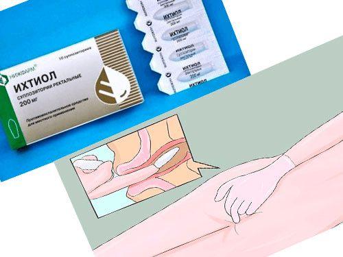 Лучшие эффективные свечи от геморроя для беременных женщин