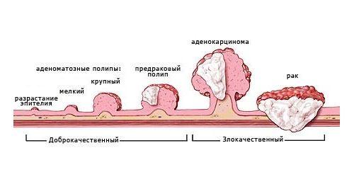 Малигнизированный полип прямой кишки