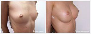 Маммопластика: восстановление и отзывы после операции