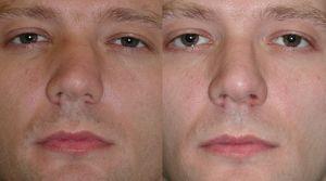 Методы исправления искривленной носовой перегородки - фото до и после