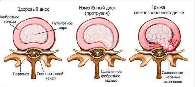 Межпозвонковая грыжа: особенности диагностики и показания к операции