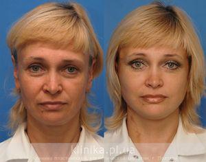 Круговая подтяжка лица — цены, описание, фото до и после