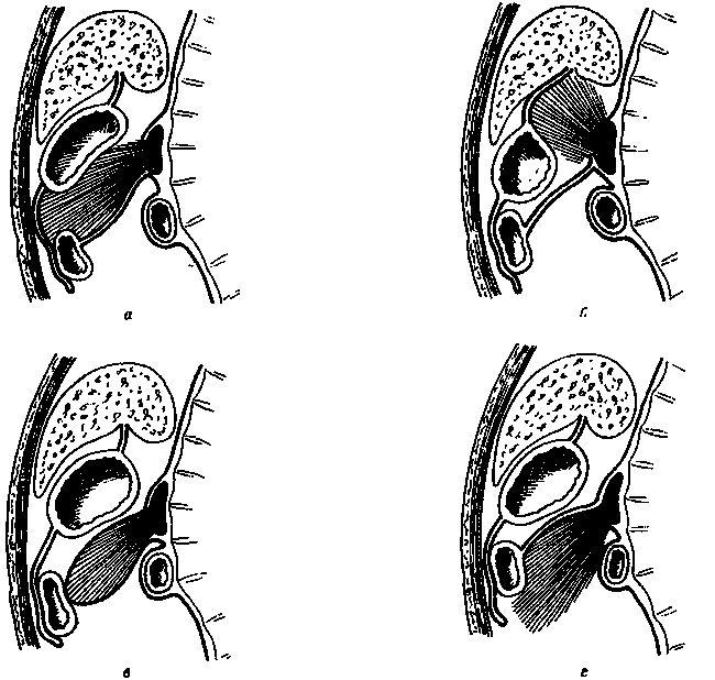 Кисты поджелудочной железы - классификация