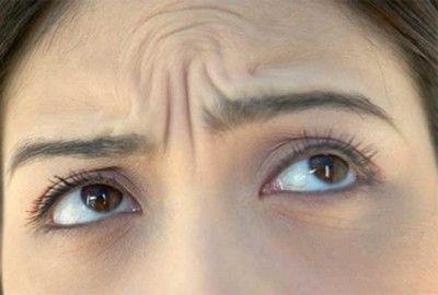 Морщины между бровями: можно ли убрать в домашних условиях