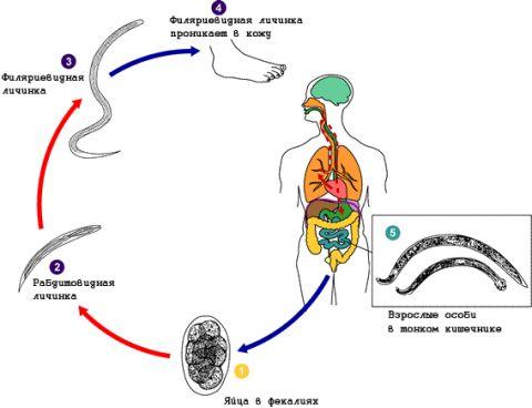 Нематода у человека, тип круглые черви (глисты, паразиты, гельминты)