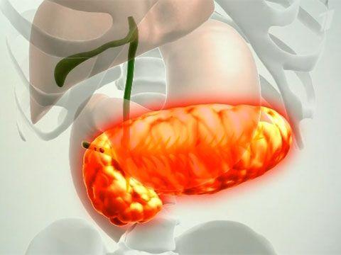 Непроходимость поджелудочной железы