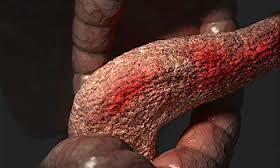 Нетрадиционное лечение панкреатита