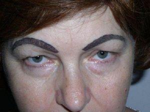 Неудачный татуаж бровей, губ и век: фото и описание