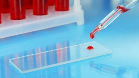 Нормы гематокрита в крови