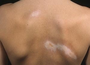 Очаговая склеродермия: причины, симптомы и лечение